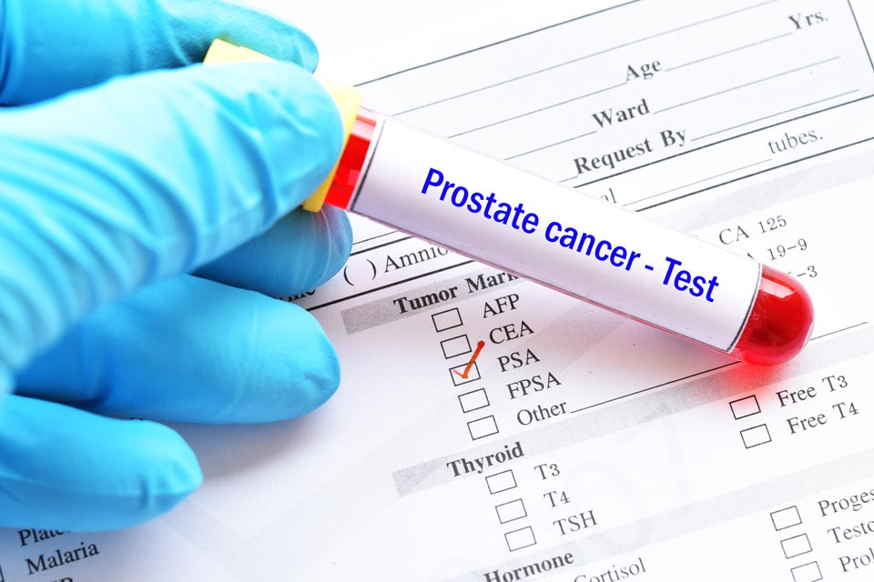 Research suggests turmeric compounds could help fight prostate cancer.