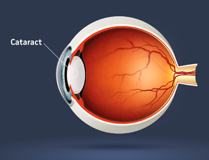 Prevent cataracts naturally.
