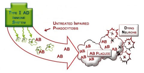 Figure IV.9: Impaired Immune-Phagocytosis System in Alzheimer's Disease