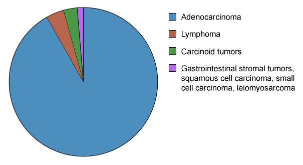 Stomach Cancer Types - by Prevalence