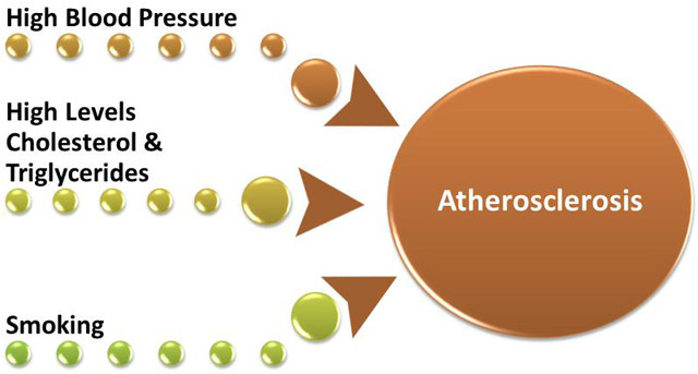 arteriosclerosis artery and blood sugar Home remedies arteriosclerosis to heal arteriosclerosis quickly,  blood sugar disorders,  decreases the inflammatory response to artery injury or irritation.