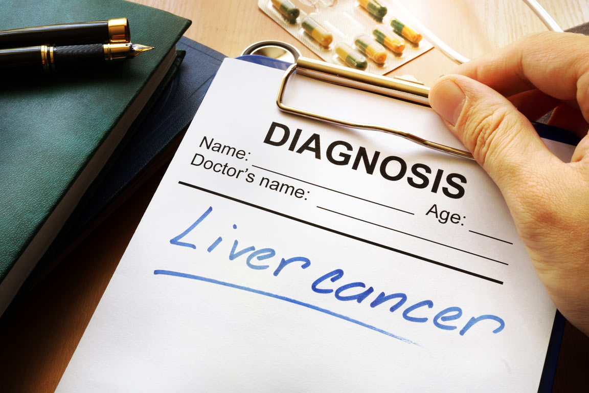 Turmeric may help prevent and treat liver cancer.